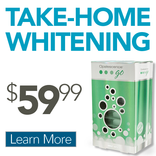 $49 Take-Home Whitening Kit Offer