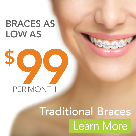 Traditional Braces Financing Offer