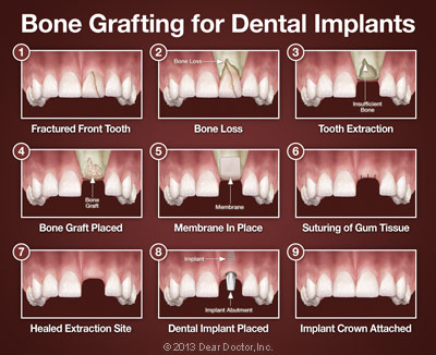 Bone grafting for dental implants.