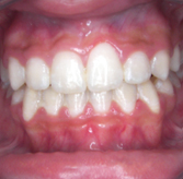 breiana-wilson-teeth-after