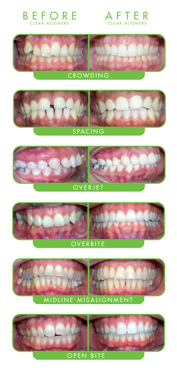 ClearCorrect Clear Aligners   Coast Dental Brandon Town Center