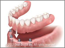 Implant-secured dentures