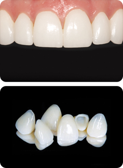 Cosmetic Dentistry | Crowns and Bridges | Coast Dental