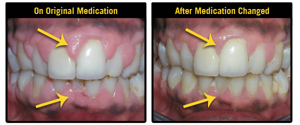 Gingival Overgrowth caused by high blood pressure medication