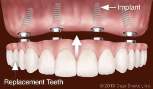 Dental Implants Replace All Teeth