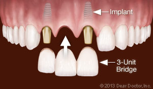 Dental Implants Replace Multiple Teeth