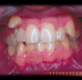 jose-villalobos-teeth-before