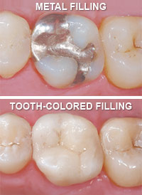 Metal fillings vs tooth-colored fillings.