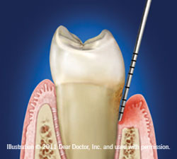Moderate Chronic Periodontitis