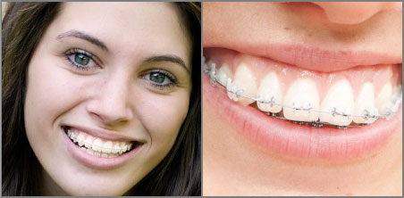 Crystal Clear Braces