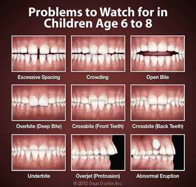 Problems to Watch for in Children Age 6 to 8.