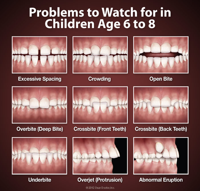 Problems to watch for in children age 6 to 8