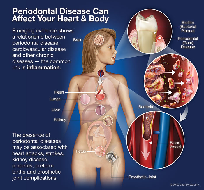 Periodontal Disease Can Affect Your Body
