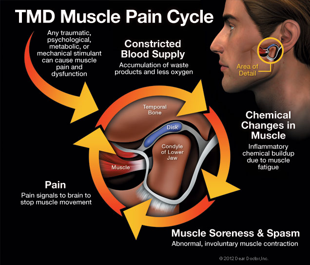 TMD Pain Cycle