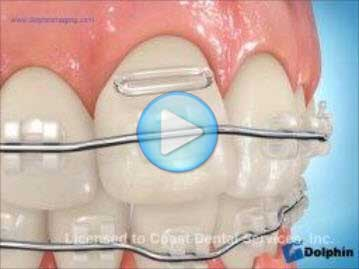 Elastomeric Ligation Clear Brackets