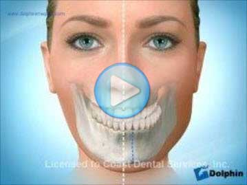 Facial Asymmetry Mandible