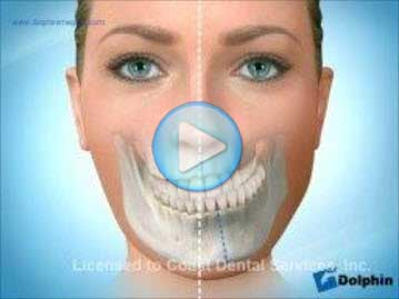 Facial Asymmetry Maxilla Mandible